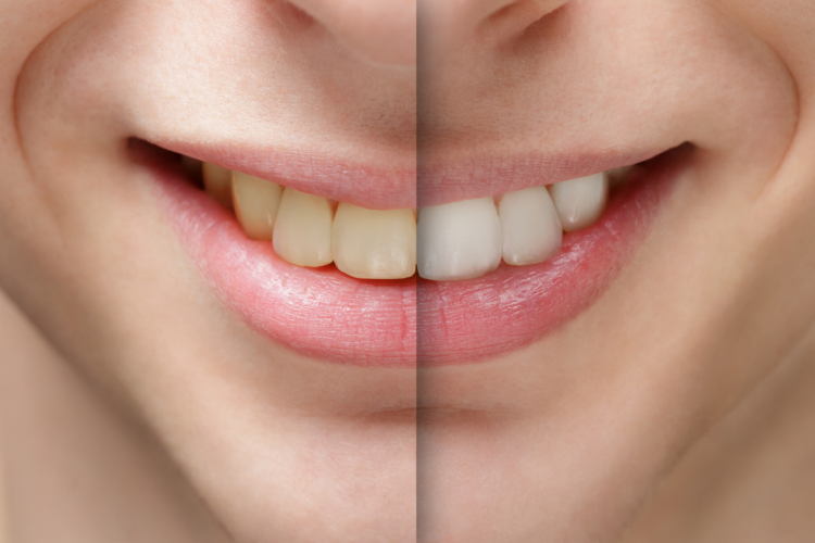 noosa family dental teeth whitening before and after