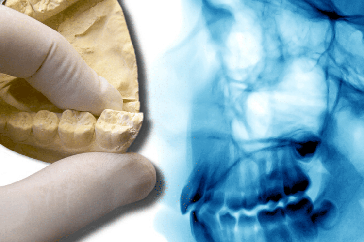 wisdom tooth xray and model